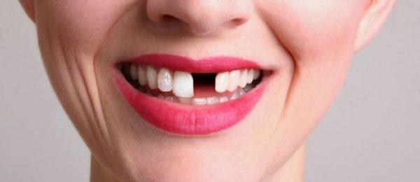 une dent manquante